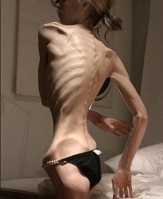bretariájnstvo a anorexia