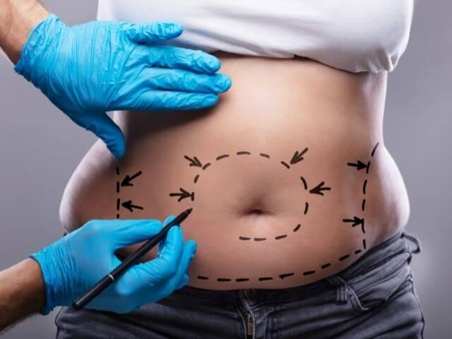 Jedným zo spôsobov, ako schudnúť po pôrode je aj liposukcia.