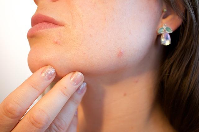 Akné je zápalová reakcia pokožky