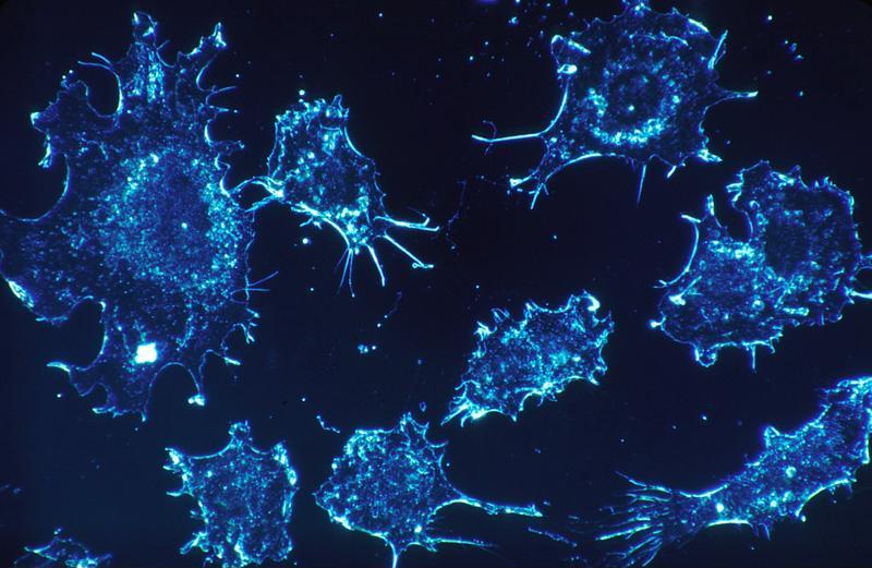 rakovinové bunky